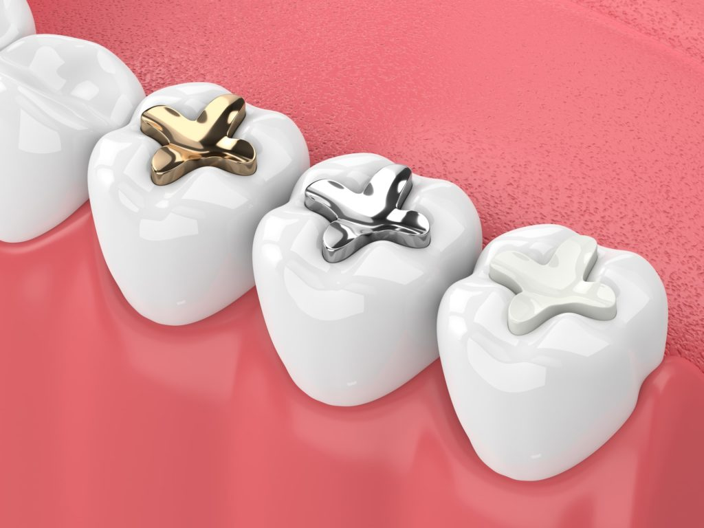 Image to Represent Tooth Fillings and Sealants Available From Summit Family Dentistry Denver, North Carolina
