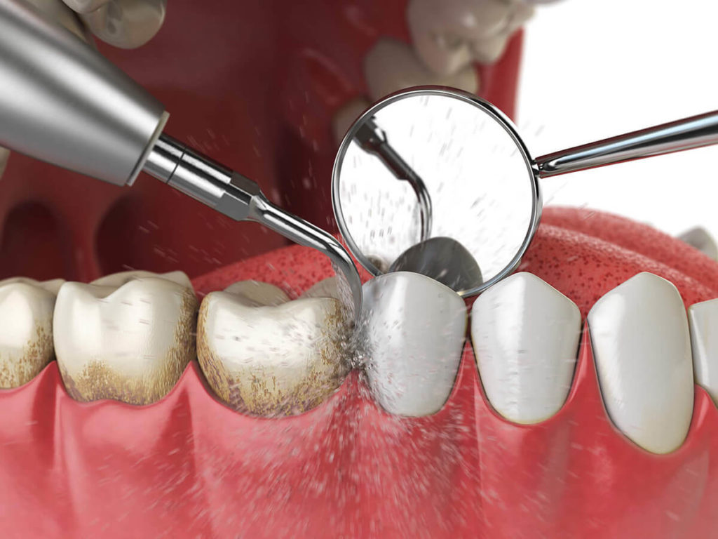 illustration of a professional teeth cleaning, removing plaque build up, at a dental exam