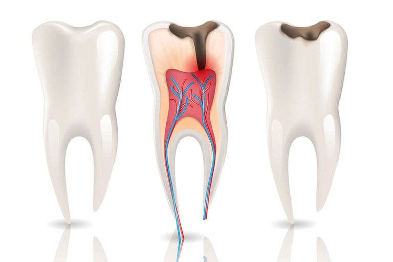 Illustration of three white teeth showing various stages of tooth decay